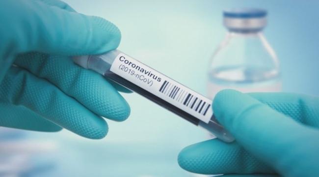 Rusya'dan aşı açıklaması: Tamamlandı