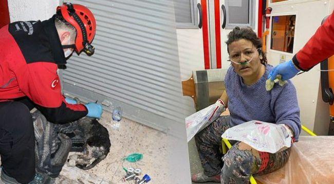 Kedisini kurtarmak isterken vücudu yandı